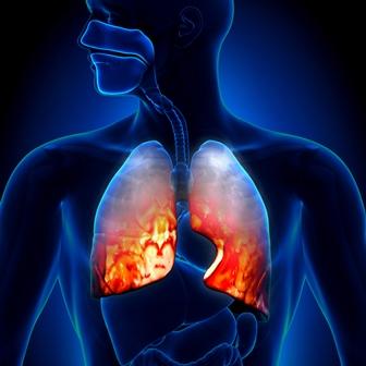 דלקת ריאות