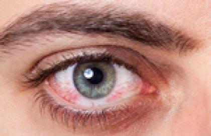 דלקת עיניים