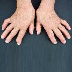 דלקת מפרקים שגרונית (ראומטואיד ארתריטיס)